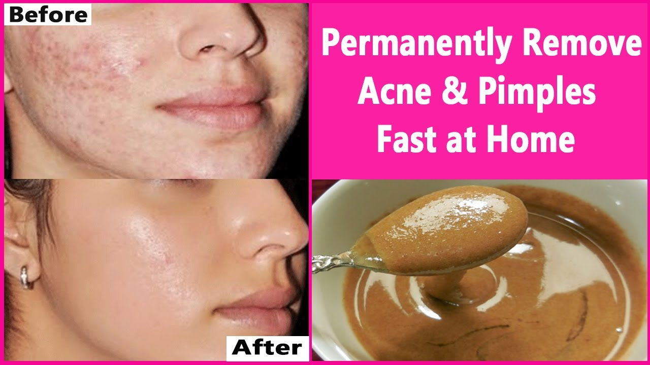 How To Remove Acne Fast At Home