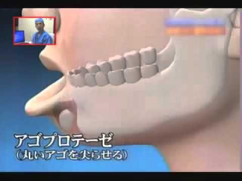 BB clinic เสริมคาง  @ BB clinic ---Chin Augmentation.wmv