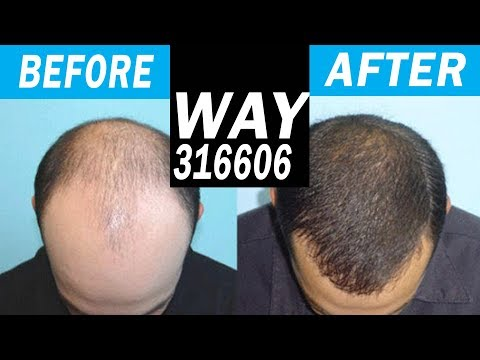 BRAND NEW HAIR LOSS CURE in 2018 WAY-316606! Legit or Not?