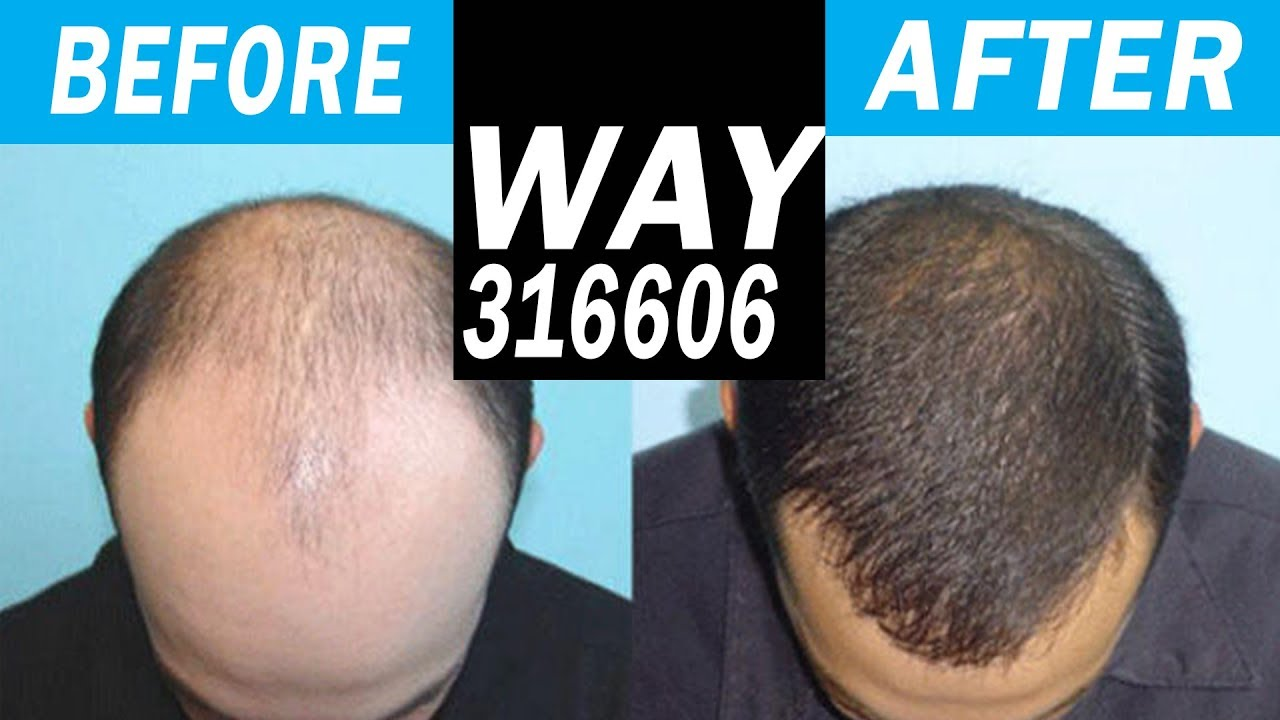 BRAND NEW HAIR LOSS CURE in 2018 WAY-316606! Legit or Not? - YouTube