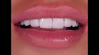 الدكتور محمد فادي قولاغاسي - ابتسامة هوليود - تركيبات الاسنان - زراعة الاسنان - عدسات الفينير - جدة