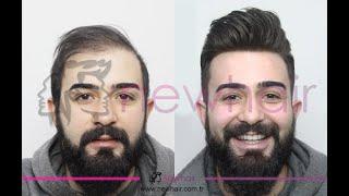 Protez Saç Uygulamalarında New Hair Protez Saç Neden Farklı?