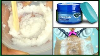 SURPRISING USE OF VICKS VAPORUB | MELTS  BELLY FAT WITH THIS FAT BURNING CREAM |Khichi Beauty