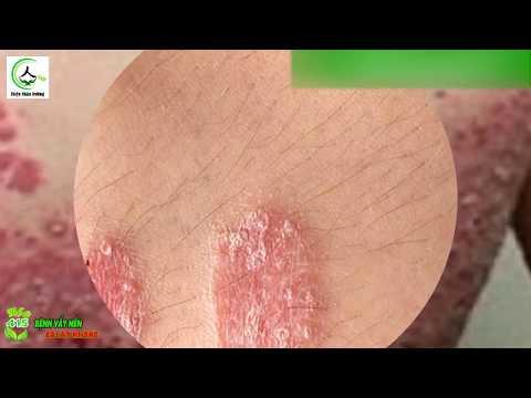 Bệnh Vẩy Nến - điều Trị Bệnh Vẩy Nến Thành Công Tới 100% Chỉ Cần Bỏ Ra 2 Phút Khi Xem Hết Clip Này