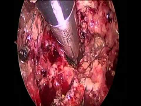 Laparoscopic transgastric necrosectomy for infected ...