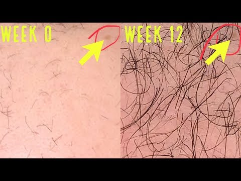 unbelievable-microneedling/derma-rolling-results-for-hair-growth!