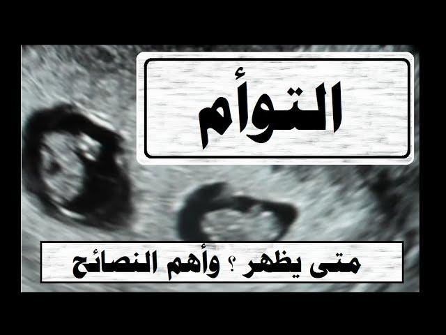 الحمل في توأم متى يظهر في السونار نوع الولادة وزن التوأم نصائح للحفاظ على الحمل بتوأم Youtube