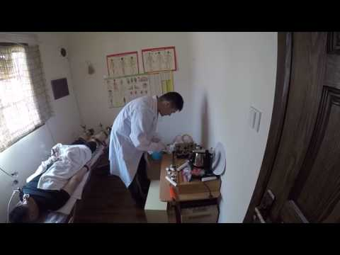 Traditional Chinese Medicine - Heat Treatment