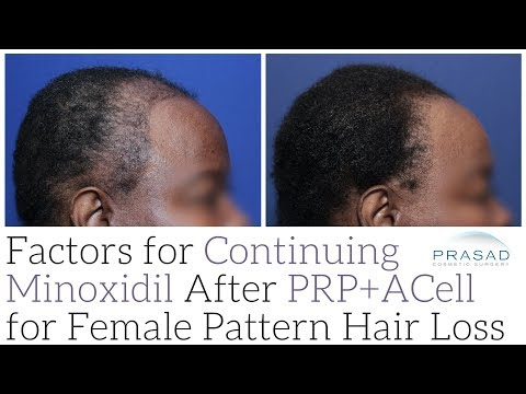 Factors to Stop or Wean Off Minoxidil After PRP+ACell for Female Pattern Hair Loss