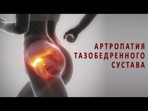 Что нужно знать об артропатии тазобедренного сустава