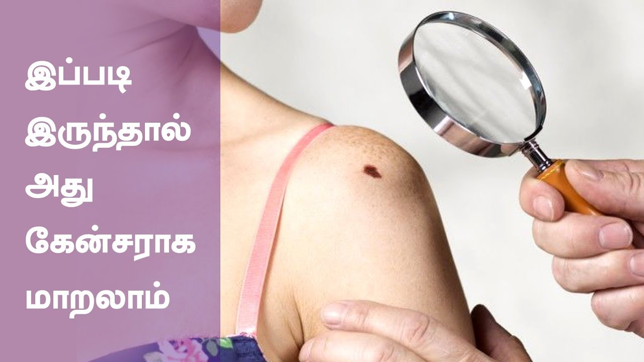 Common Cancer Symptoms And Signs Health Tips In Tamil Youtube