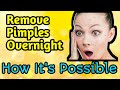 Remove your pimple overnight   How it's Possible