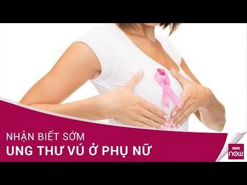 Nhận biết sớm ung thư vú ở phụ nữ | VTC Now