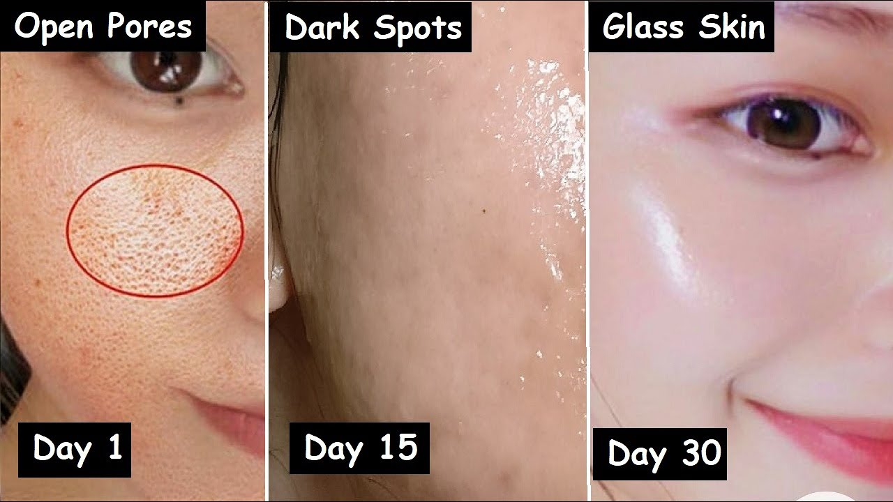 Damaged Skin Repair in 30 Days - Close LARGE OPEN PORES & Remove Dark Spots | Get GLASS Skin