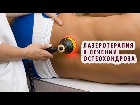 Лазеротерапия в лечении остеохондроза