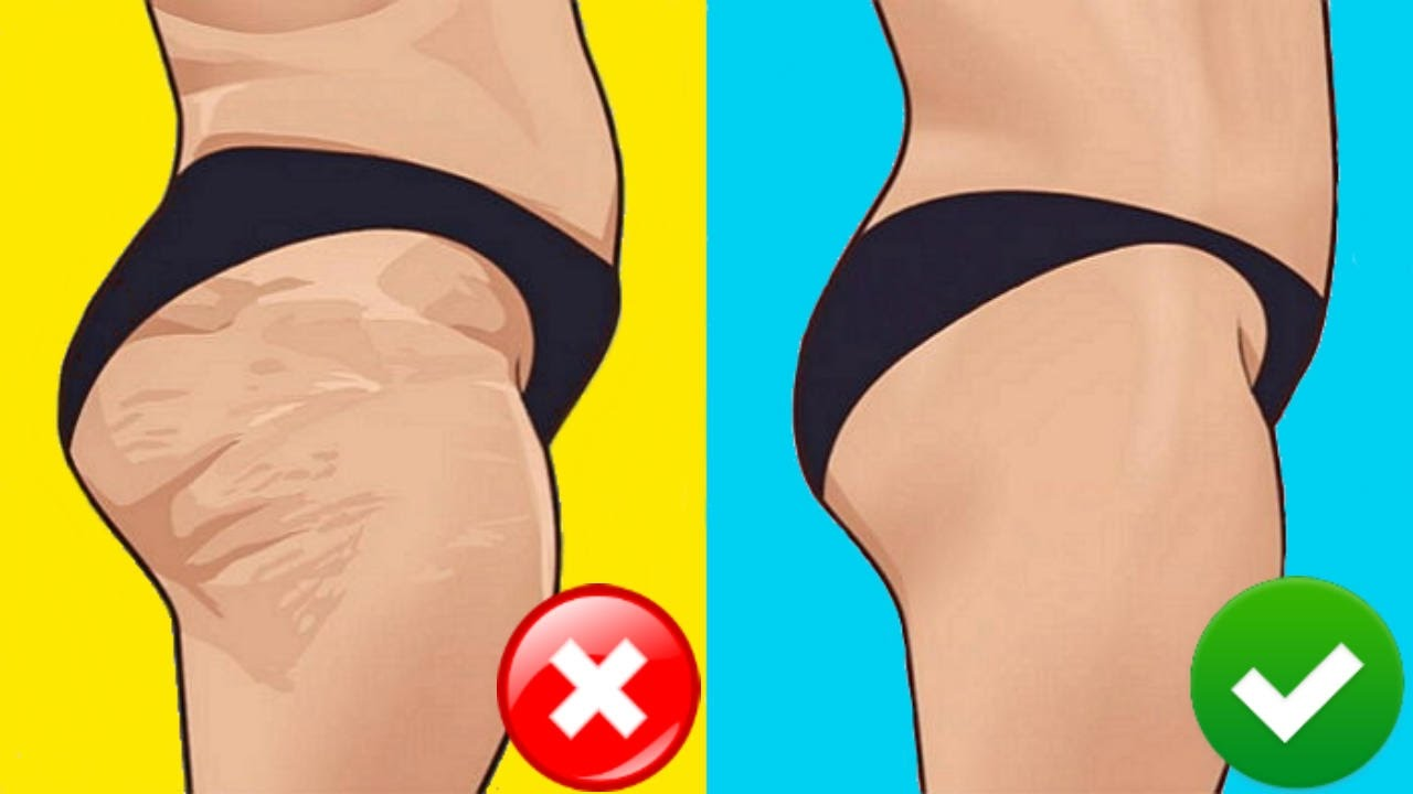 47d3ceb254a How to Get Rid of Cellulite on Thighs - YouTube