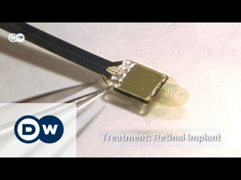 An implant helps the blind see | Tomorrow Today