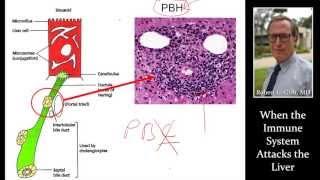 AUTOIMMUNE HEPATITIS by Dr. Robert Gish