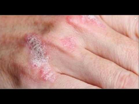 the-miracle-plant-that-treats-eczema,-psoriasis,-dermatitis-and-other-skin-allergies