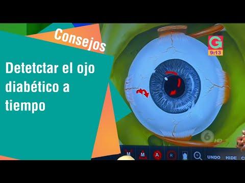 Detectar el ojo diabético a tiempo