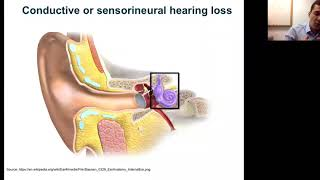 WEBINAR Inner Ear Gene Therapy – Recent Advances and Clinical Perspectives