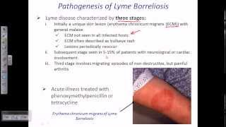 Lyme disease by borrelia