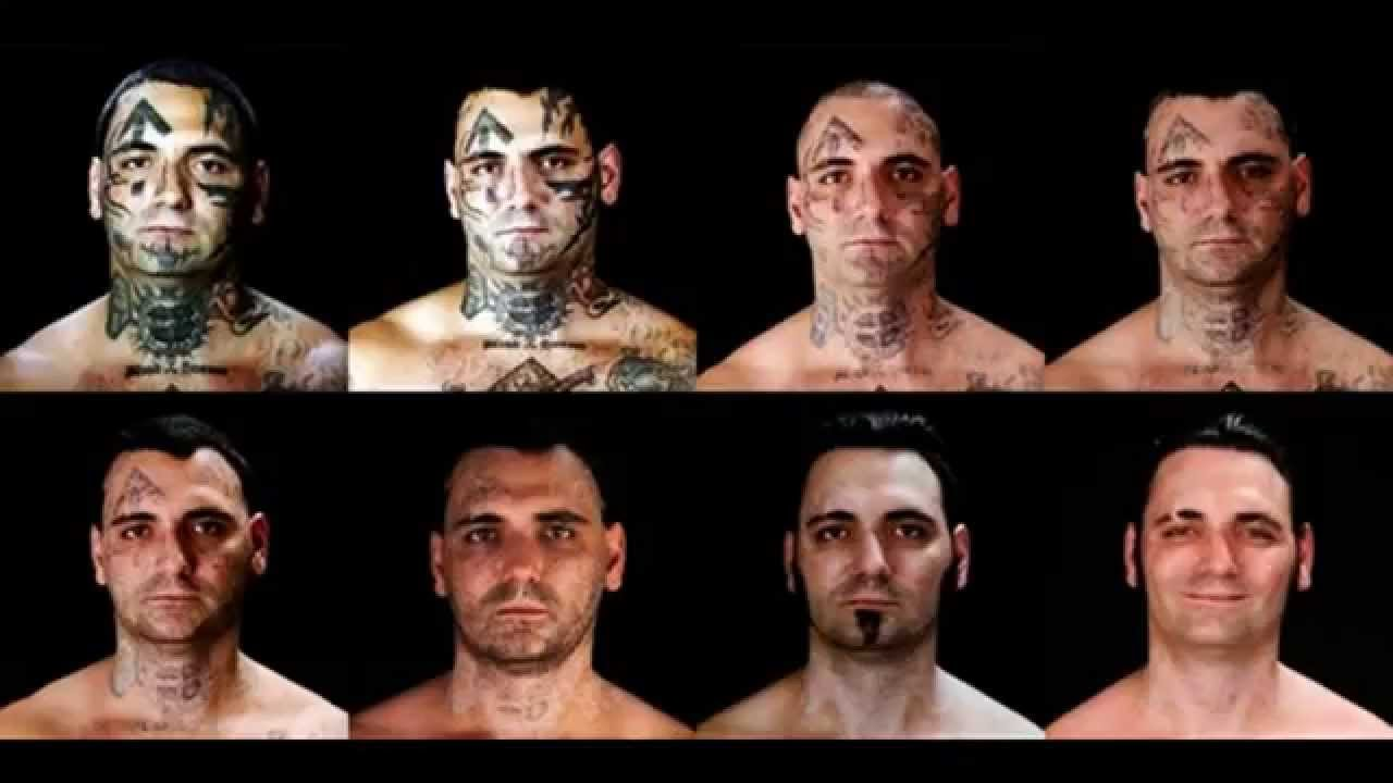 Tattoo Removal Cost - YouTube