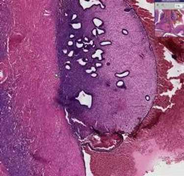 histopathology ovaryendometriosis youtube