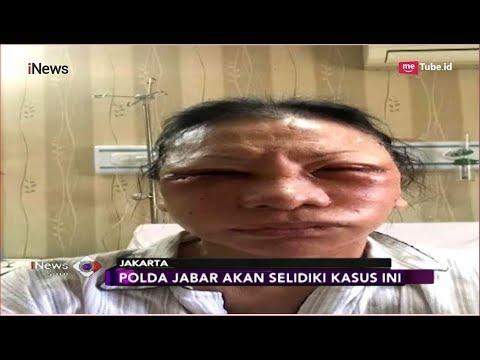 Beredar Kabar Ratna Sarumpaet Dianiaya Hingga Babak Belur - iNews Sore 02/10