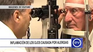 Alérgico edema periorbitario tratamiento de
