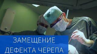 Современная технология замещения дефекта черепа(http://www.emcmos.ru Известный нейрохирург, профессор Кривошапкин выполнил операцию по устранению дефекта черепа..., 2016-08-09T08:57:24.000Z)