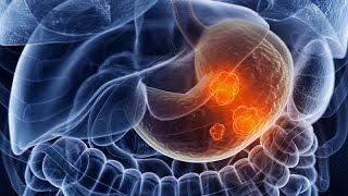 Первые признаки рака желудка, прогноз в зависимости от стадии и лечение(Рак желудка - один из наиболее серьезных видов онкологии, который занимает 3 место в мире по частоте смертно..., 2016-12-26T14:05:31.000Z)