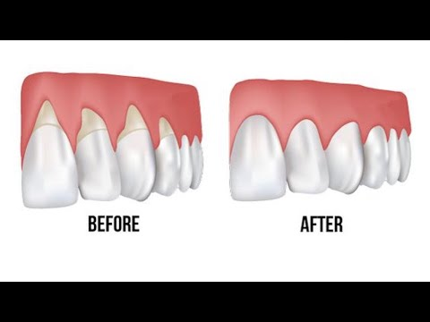 Grow Back Your Receding Gums With The Help Of These Natural Remedies!