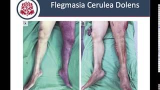 Extremidad trombosis venosa profunda 10 icd crónica la izquierda inferior de