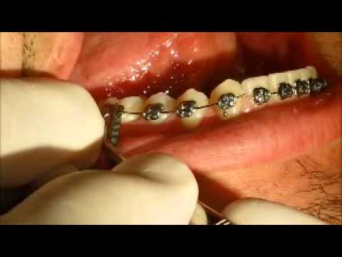 Bracket Came Off Tooth But Still On Wire | Wire Has Come Out Of The Back Bracket Youtube