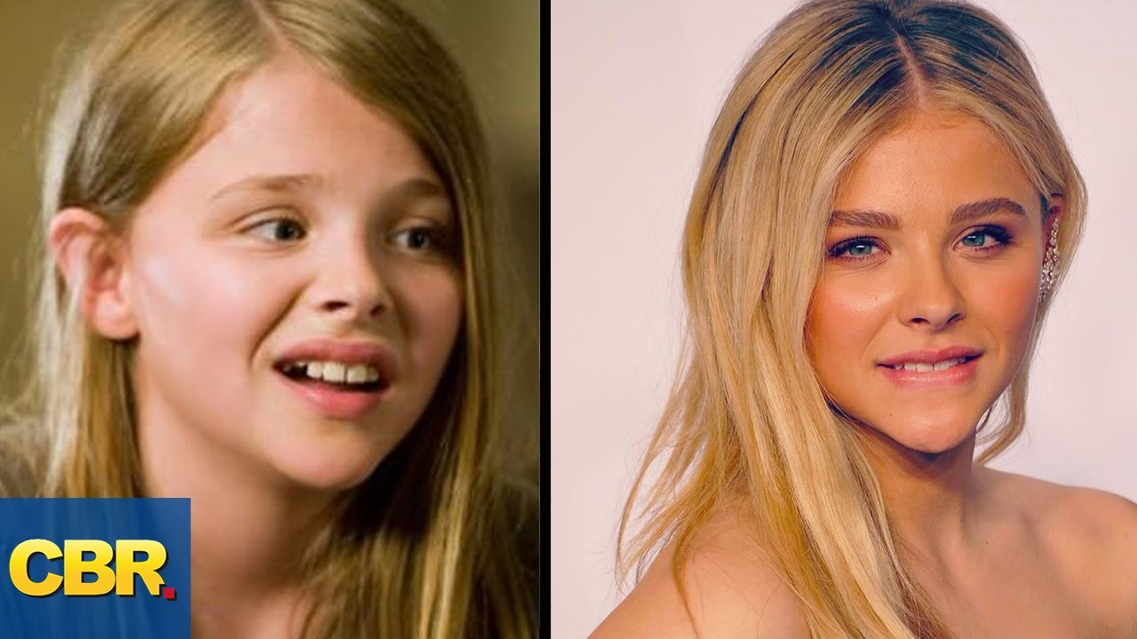 10 awkward child stars who grew up to be insanely hot