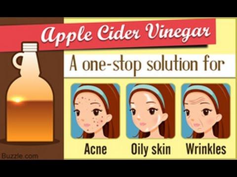 7-amazing-benefits-of-apple-cider-vinegar-for-the-skin
