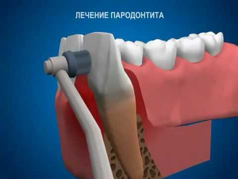 Лечение пародонтита.avi.mp4