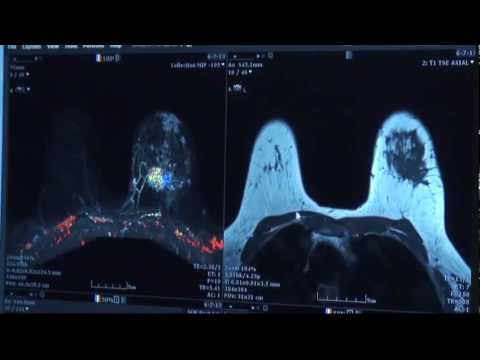 Breast Cancer | Is It Cancer or a Cyst? | Woman's Hospital -- Baton Rouge, La.