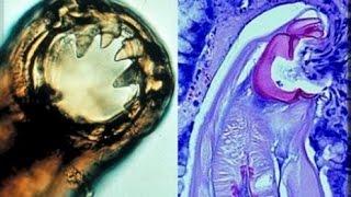 definition of nematodes | صفات وتعريف الديدان الأسطوانية