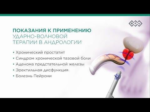 Лечение простатита ударно волновой терапией - как проводится?