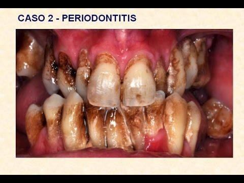 Infecciones de la boca y enfermedad del corazon - Sequedad de boca remedios naturales ...
