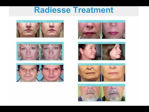 Facial Rejuvenation Webinar - Dr. David Goldenberg