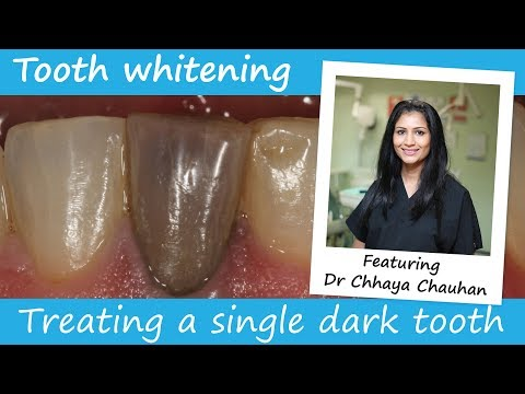 How To Whiten A Single Dark Tooth