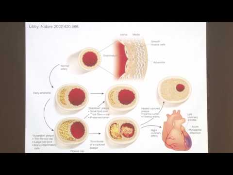 Heart Disease Prevention: What You Need to Know