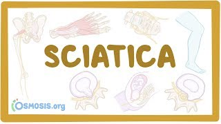 Sciatica - causes, symptoms, diagnosis, treatment, pathology
