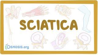 Sciatica - Causes, Symptoms, Diagnosis, Treatment, Pathology