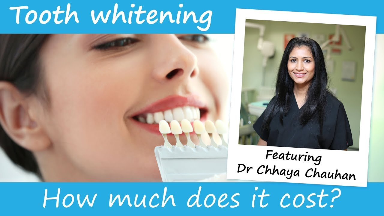 How Much Does Teeth Whitening Cost Youtube