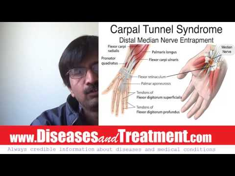 Carpal Tunnel Syndrome :  causes,  symptoms,  diagnosis,  treatment, complications