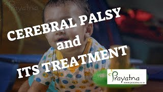 cerebral palsy treatment in kerala|Ernakulam|sensory integration therapy for autism|ernakulam